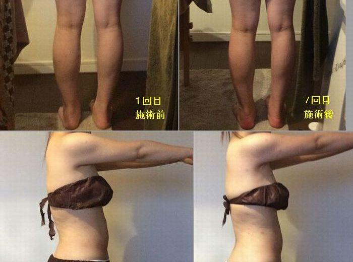 筋膜リリース&ハイパーナイフ ビフォーアフター